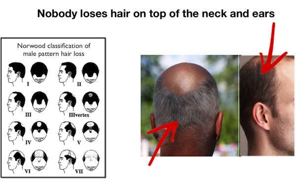 how to get rid of low hairline on neck